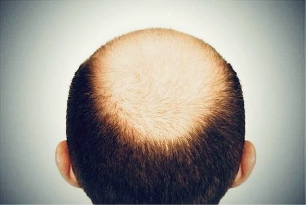 地中海,掉髮,禿頭,雄性禿,頭髮稀疏,髮線後退,髮際線高 @益曼小天使 (益曼中醫)